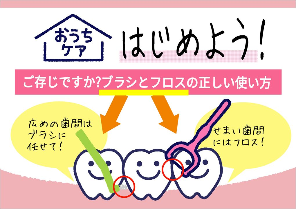 歯間ブラシとフロスの使い方POP、歯医者さんポップ